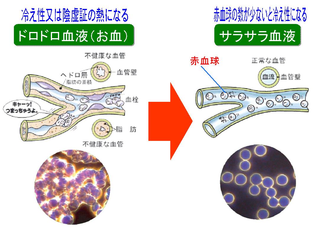 血液がドロドロでも赤血球が少なくても冷え性になる 冷え性・便秘・ひざ痛・腰痛・風邪・その他皮膚病など、私がお手伝い致します。
