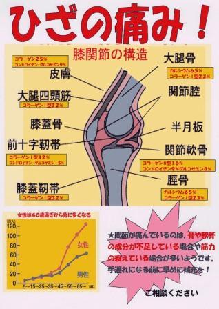 ひざの痛み 膝関節の構造 ひざ痛専門薬局 ドラグハラダ 今まで300名以上の方から喜ばれています。あきらめないで下さい。必ずよい結果が出ます。